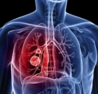 Lung cancer treatments discussed at meeting