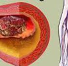 New procedure relieves blood clot